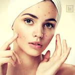 Skin and Face Care - acne, fairness, wrinkles APK